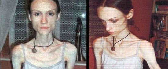 Anorektička vážila 22 kilo. Hodiny od smrti!
