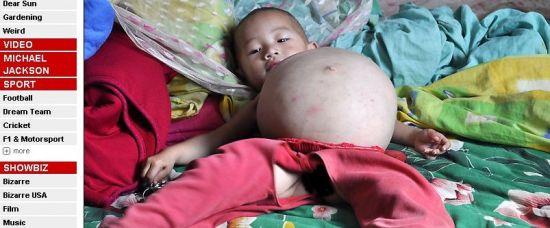 Roční holčička má v břiše své dvojče