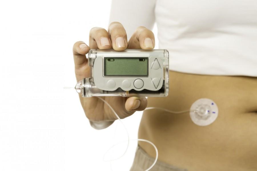 Inzulinová pumpa