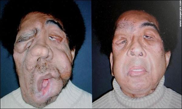 Transplantace obličeje - dnes už realita!